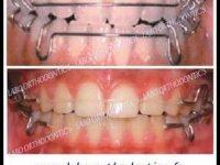 Résultat avec bandeau transparent Orthodontic's