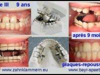 classe III plaques-repousseurs orthopédiques, dentition mixte